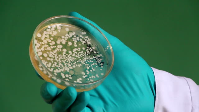 Doctor  holds petri dish loaded with bacterial colonies video
