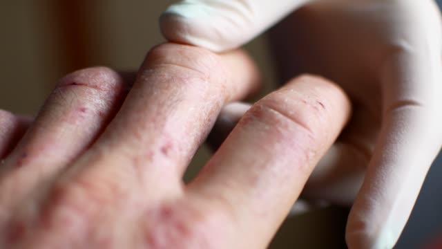 Doctor en guantes examina las manos de un hombre con psoriasis - vídeo