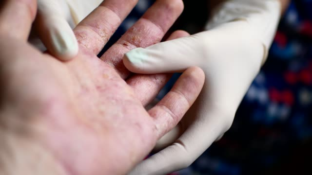 Doctor in gloves examines the hands of a man with psoriasis video