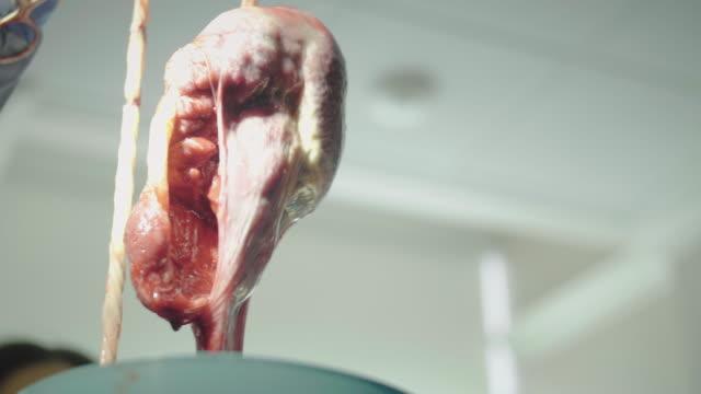 Médecin à l'hôpital tenant sanglante Placenta après la naissance du nouveau-né - Vidéo