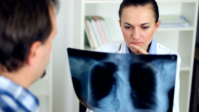Doctor in the office looking at xray of human lungs video