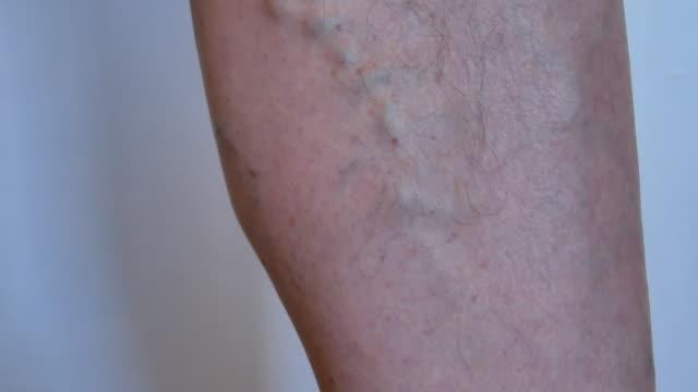vídeos de stock e filmes b-roll de doctor inspecting leg of old man with varicose veins - coração fraco