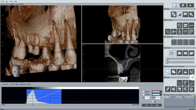 医師は歯科用 3 d スキャン将来インプラントをチェックします。 - 歯科医師点の映像素材/bロール
