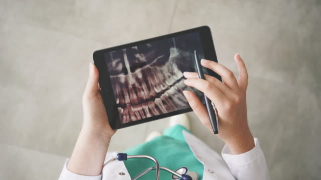 doctor looking at teeth x-ray on digital tablet - dentist стоковые видео и кадры b-roll