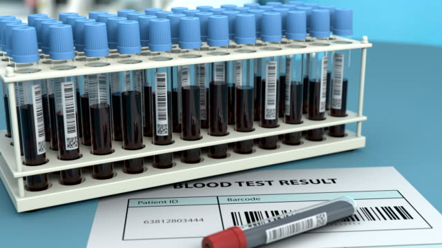 Doctor marks the blood sample test as positive video