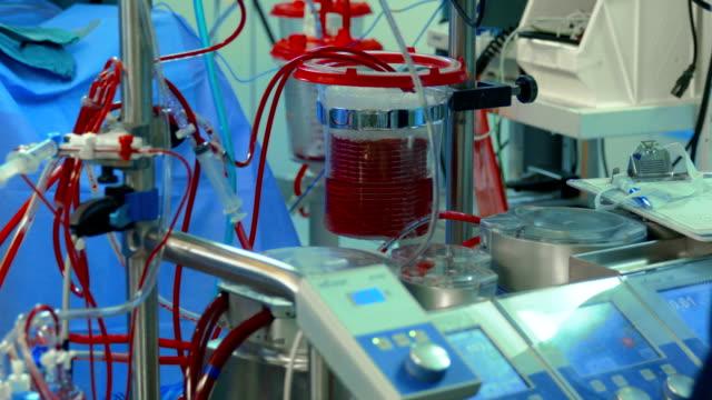 vídeos de stock, filmes e b-roll de médico perto da máquina de desvio cardiopulmonar humano - marcapasso cirurgia cardíaca