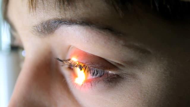 Médico examina O optometrista Oftalmologista retina para o paciente usando um instrumento especiais, fechar-se - vídeo