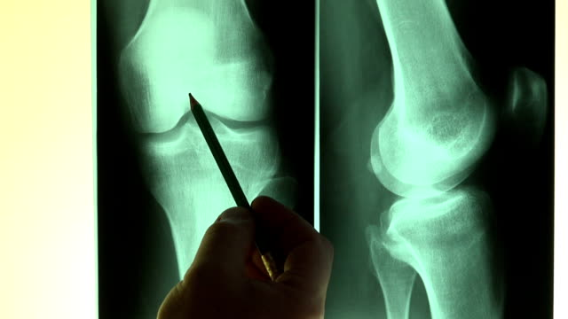 Doctor reading X-Rays pointing with a pencil Doctor reading x-rays and points with a pencil knee stock videos & royalty-free footage