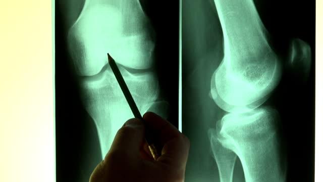 vídeos y material grabado en eventos de stock de lectura radiografías médico señalando con un lápiz - rayos x