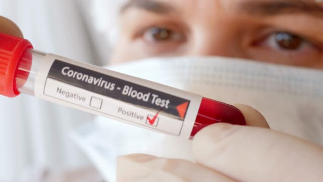 doctor showing tube, positive result of blood test for coronavirus, close - emozione positiva video stock e b–roll