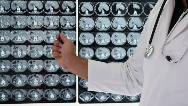 Doctor shows a disease on a X-Ray image. video