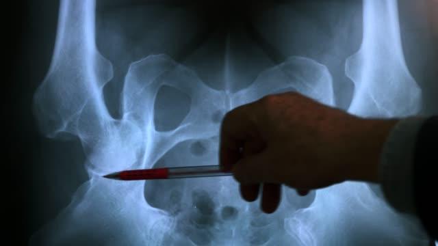 doktor untersucht röntgenbild von beckenknochen, 4k - hüfte stock-videos und b-roll-filmmaterial
