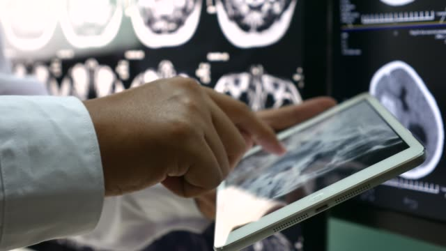 doctor using digital tablet with x-ray image - медицинский рентген стоковые видео и кадры b-roll