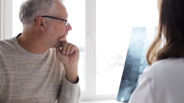 doctor with spine x-ray and senior man at hospital medicine, healthcare, surgery, radiology and people concept - doctor showing x-ray of spine to senior man at hospital x ray image stock videos & royalty-free footage