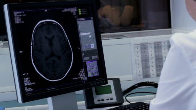 Doctor works at the computer with tomography brain video
