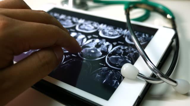 vídeos de stock e filmes b-roll de médicos examinando uma imagem de raio-x do cérebro tomografia computadorizada num tablet, o conceito de médico - tomografia