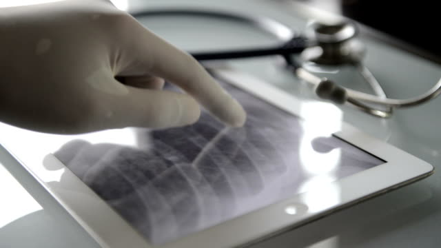 Doctors Examining X-Ray Image On A Tablet video