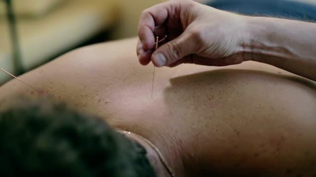 läkarens hand röra akupunktur nål som fastnar på baksidan av patienten. - acupuncture bildbanksvideor och videomaterial från bakom kulisserna