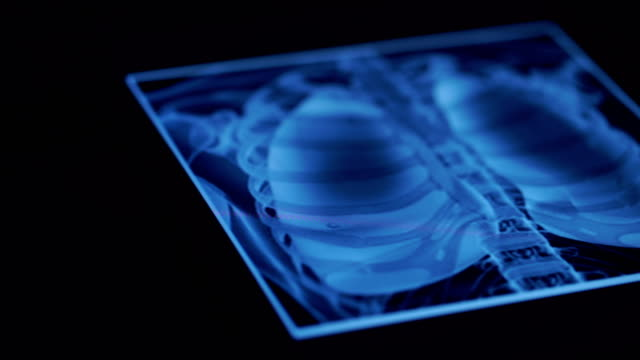 stockvideo's en b-roll-footage met ws:doctors met behulp van digitale tablet - medische röntgenfoto