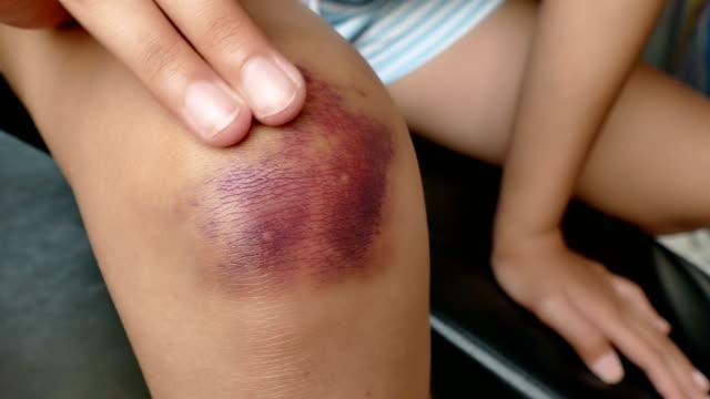 4k dolly girl get bruise on knee - rana filmów i materiałów b-roll