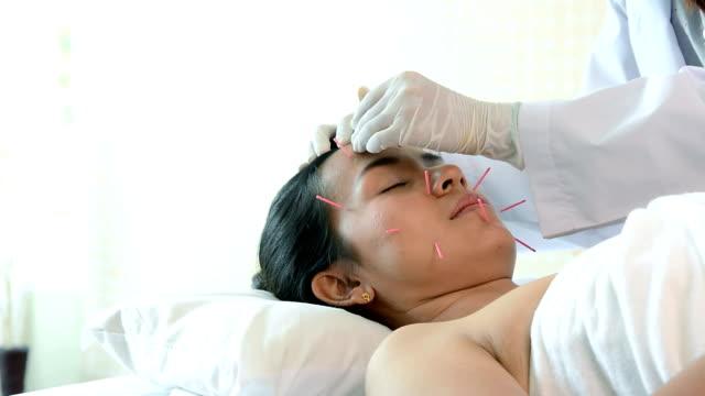dolly skott av unga vackra kvinnan att få akupunkturbehandling från akupunktörer, terapeut ger akupunkturbehandling till kundens huvud på säng - acupuncture bildbanksvideor och videomaterial från bakom kulisserna