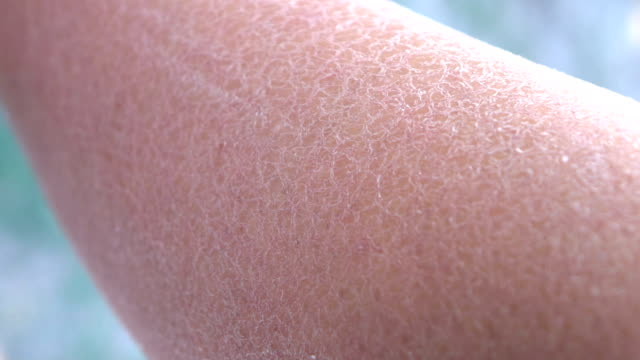 MACRO: Drastically dehydrated flaky layer of white skin on adult woman hand