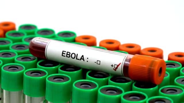 Ebola virus positive