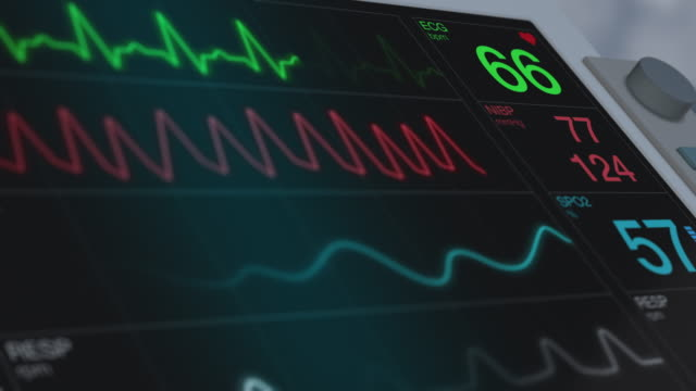 ecg ekg monitor closeup view of an ecg ekg monitor on a operating room (3d render) pulse trace stock videos & royalty-free footage