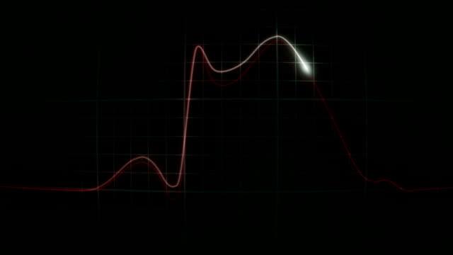 vídeos de stock e filmes b-roll de ecg_heartattackintimecolorconvex - ataque cardíaco