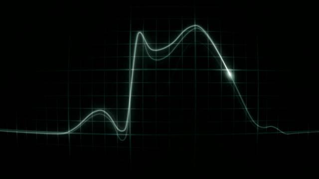 vídeos de stock e filmes b-roll de ecg_heartattackintimeoverlapconvex - ataque cardíaco