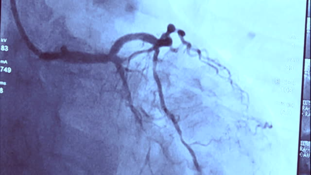 echocardiography | coronary angiography - radiografia video stock e b–roll
