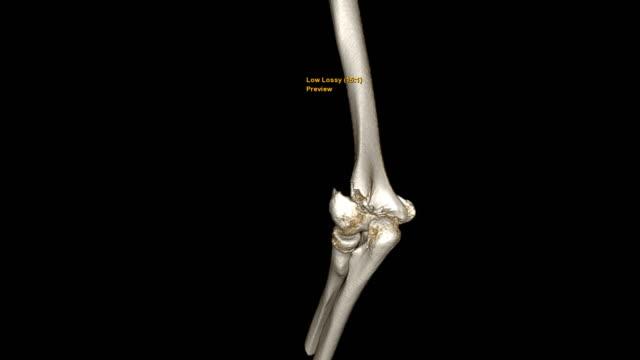 vídeos y material grabado en eventos de stock de ct codo 3d renderización de imagen turnaround en la pantalla que muestra fractura hueso del húmero izquierdo. - columna vertebral humana