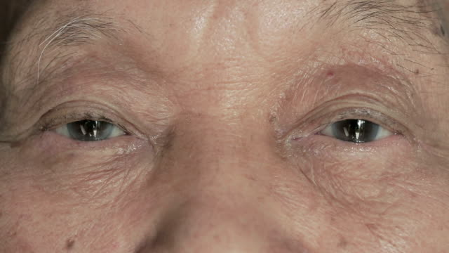 Elderly Men Eye video