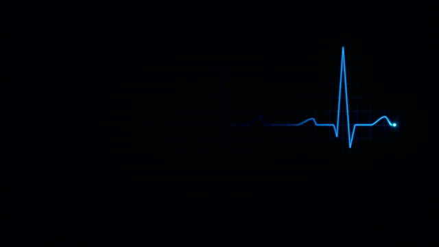Electrocardiogram. Loopable. 3 in 1. Blue. Heartbeat waves showing 3 conditions: tachycardia, healthy heartbeat and loose of heartbeat. Loopable. Full HD. Animation created exclusively for iStockphoto.  pulse trace stock videos & royalty-free footage