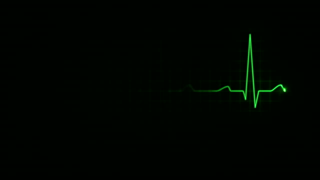 Electrocardiogram. Loopable. 3 in 1. Green.