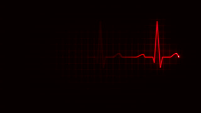 Electrocardiogram. Loopable. 3 in 1. Red. Heartbeat waves showing 3 conditions: tachycardia, healthy heartbeat and loose of heartbeat. Loopable. Full HD. Animation created exclusively for iStockphoto.  pulse trace stock videos & royalty-free footage