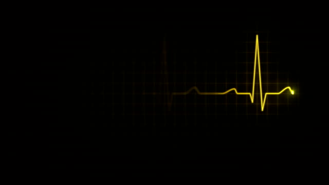 Electrocardiogram. Loopable. 3 in 1. Yellow. video