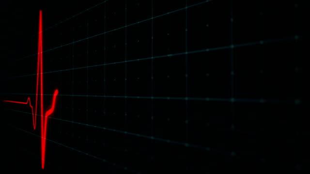 心電図スクリーン、ekg心拍モニタリング - リスク点の映像素材/bロール