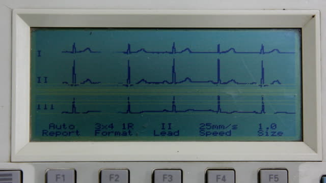 Electrocardiography Electrocardiography electrode stock videos & royalty-free footage