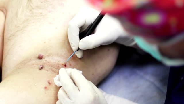Electrocoagulation of papillomas. video