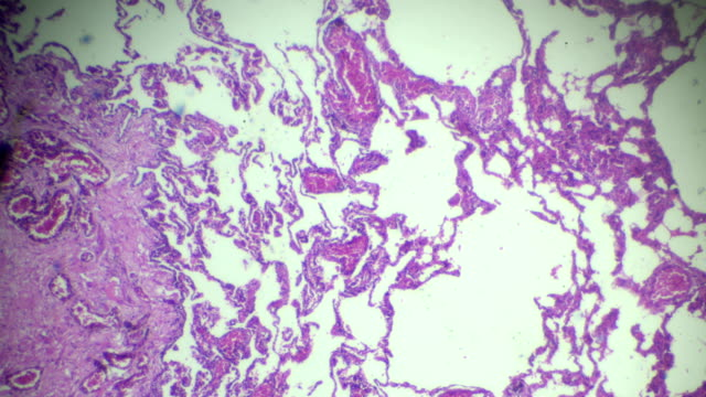 Emphysema human pathological sample under microscope Emphysema human pathological sample under microscope emphysema stock videos & royalty-free footage