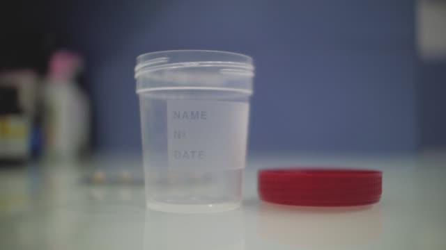tömma urin behållaren med locket öppet på läkarens skriv bord. behållare för urin analys - medicinskt stickprov bildbanksvideor och videomaterial från bakom kulisserna