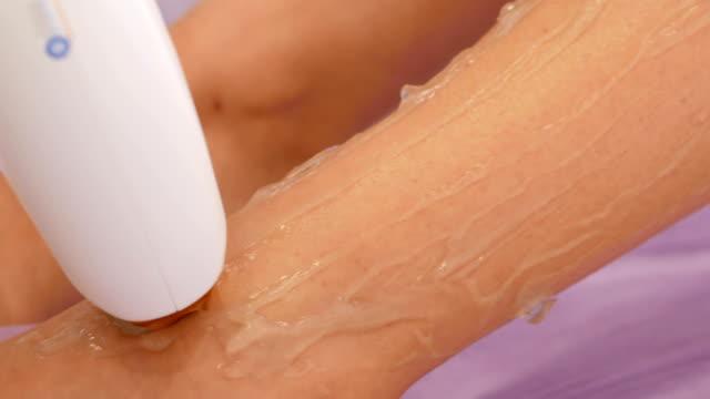 Epilation Laser Treatment To Woman On leg video