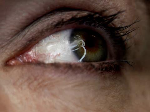 pal -極端なクローズアップ目玉にダーツ - 検眼医点の映像素材/bロール