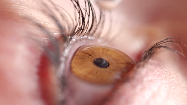 SLOW MOTION MACRO: Eye contracts and relaxes when droplet touches surface of eye