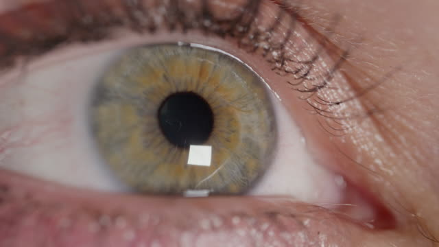 SLOW MOTION MACRO: Eye lid opens, green eye stares intensely at bright sunlight. video