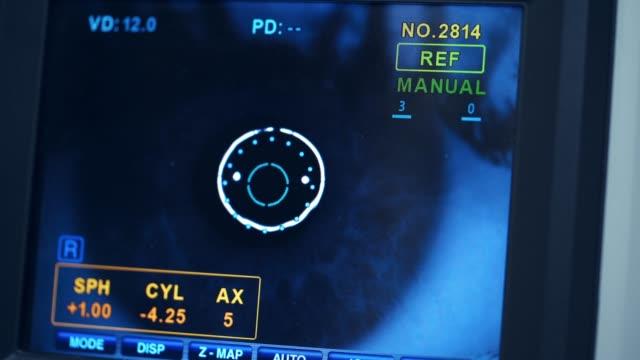 Eye operation monitor