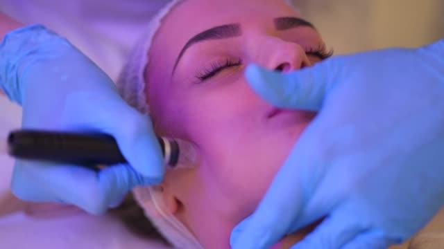 gesicht mikrodermabrasion - kosmetische behandlung stock-videos und b-roll-filmmaterial