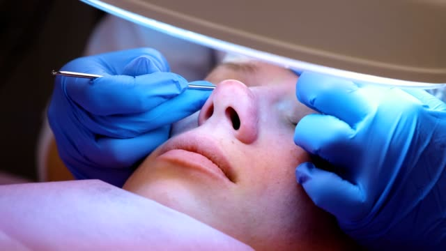 Facial cleansing at the beautician. Squeezing pimples on the nose with a needle and magnifier. Close-up face. Facial cleansing at the beautician. Squeezing pimples on the nose with a needle and magnifier. Close-up face beautician stock videos & royalty-free footage