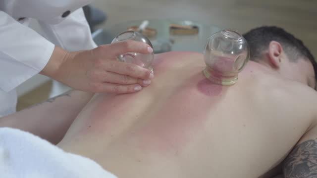 kvinnlig akupunktör tar av koppar från baksidan av unga kaukasiska brunett man. professionell läkare healing muskelsmärta med traditionell asiatisk medicin. ryggvärk behandling, koppning. - människorygg bildbanksvideor och videomaterial från bakom kulisserna